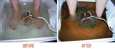 Ionic Foot Bath - Sunflower Therapies