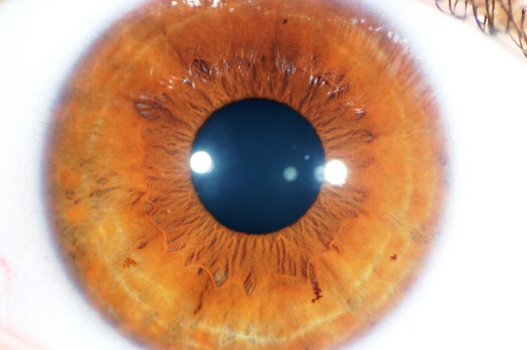 Iridology is a way of looking at the condition of the bowel